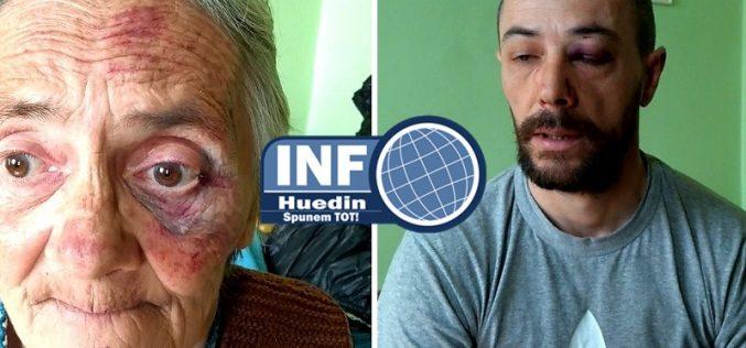 VIDEO – Bătaie în Aghireșu Fabrici, polițiștii au ajuns târziu. Mama unui bărbat implicat în scandal a fost și ea rănită