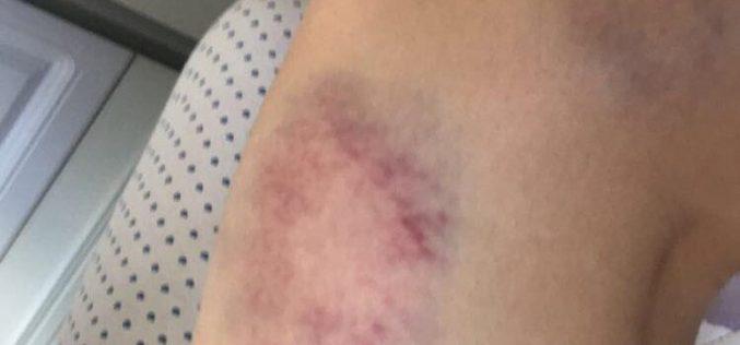 FOTO – Tânără rănită după ce a căzut într-un canal neasigurat din Huedin